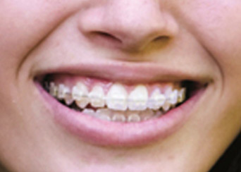 Braces and Orthodontics