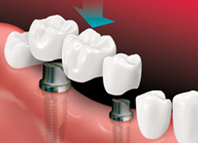 A bridge is placed on implants