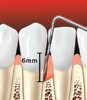 Periodontal probe showing a pocket forming between the tooth root and the gums.
