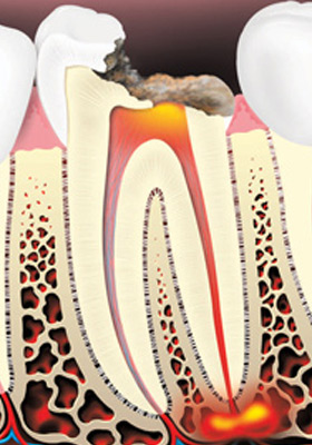 Tooth decay can cause an abscessed (infected) tooth.