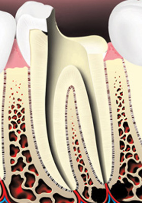The pulp and nerve are removed, and the root canals inside the tooth are cleaned and shaped.