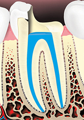 The root canals and pulp chamber are filled.