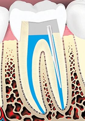 The crown of the tooth is then restored.