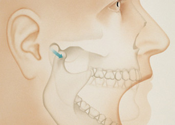 TMD – Temporomandibular Disorders