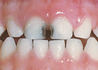 Tooth Decay in Baby Teeth