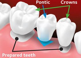 The custom-made bridge is placed over the prepared teeth.