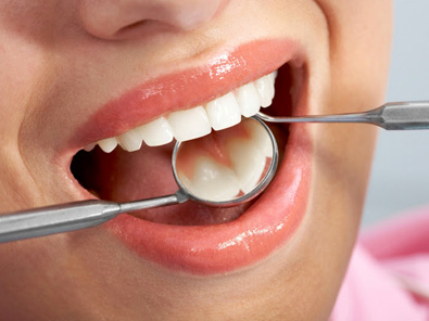 Periodontal Dental Services for Gum Disease: